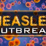 Louisiana Department of Health encourages doctors to be alert to measles cases
